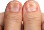 اعراض مرض البري بري