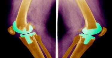 أضرار عملية تغيير مفصل الركبة بالتفصيل