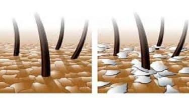 اضرار قشرة الشعر وعلاجها