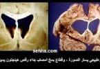 ما هي اعراض مرض هنتنغتون
