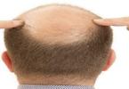 أدوية لعلاج تساقط الشعر للرجال