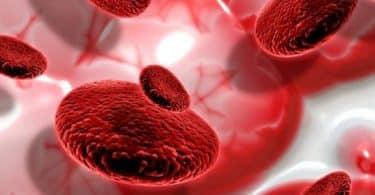 أسباب مرض فقر الدم بعوز حمض الفوليك