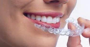 تقويم الاسنان الشفاف .. الأنواع والسعر بالتفصيل