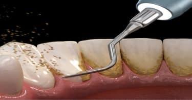 سعر تنظيف الاسنان من الجير في مصر