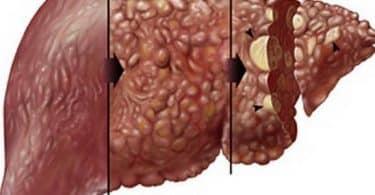 ما لا تعرفه عن تليف الكبد
