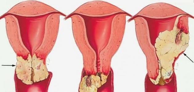 ما هي مسببات سرطان عنق الرحم
