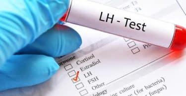 معلومات عن تحليل LH