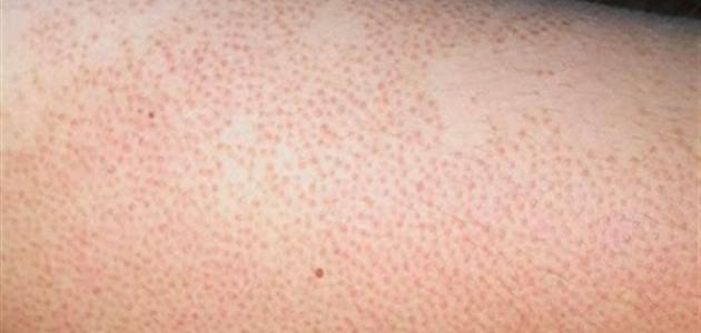 معلومات طبية عن جلد الوزة
