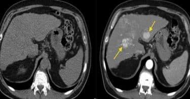 معلومات عن اضرار اشعة الصبغة على المخ