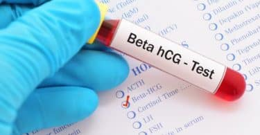 معلومات عن تحليل الحمل بالدم
