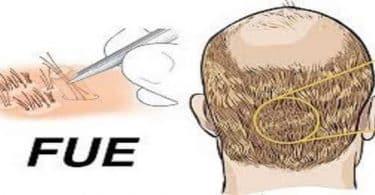 معلومات عن زراعة الشعر بالاقتطاف FUE وطريقة إجرائها