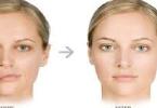 علاج شلل العصب السابع الوجهي بالوزنة الذهبية للجفن