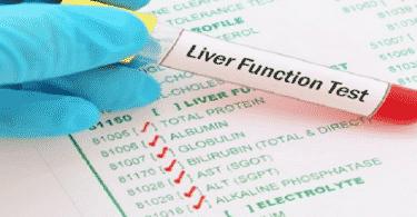 أسباب إرتفاع تحليل إنزيمات الكبد