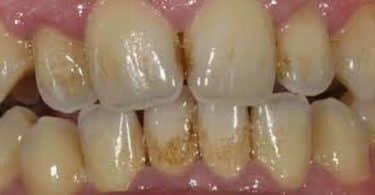 ازالة جير الاسنان الاسود بالخل