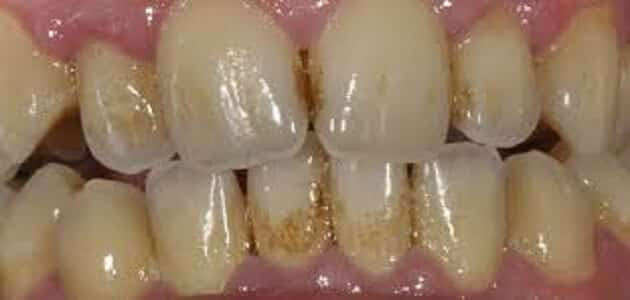 ازالة جير الاسنان الاسود بالخل | معلومة ثقافية