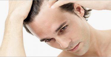 اسباب تساقط الشعر عند الرجال وطرق علاجه
