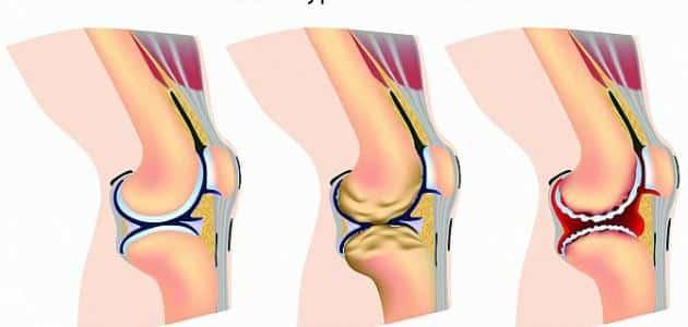 اعراض خشونة الركبة وطرق الوقاية منها