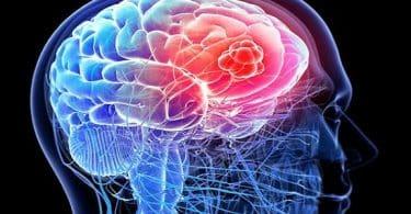 اعراض سرطان المخ بالتفصيل