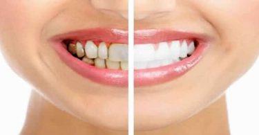 انواع تبييض الاسنان واسعارها في مصر