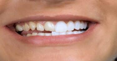 تلبيس الاسنان | أفضل الأنواع وطرق العلاج