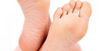 علاج تشقق القدمين وجفافها