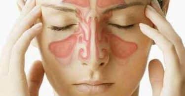 علاج حساسية الأنف نهائيا