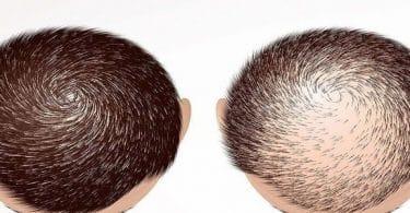عملية زراعة الشعر في جدة | الأسعار والعيادات