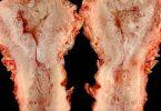 كيفية علاج ضمور الرحم