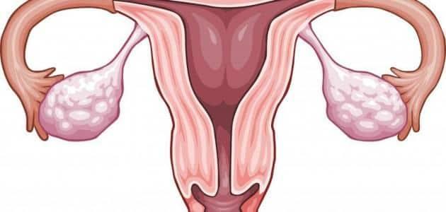 ما هو علاج الرحم ذو القرنين؟