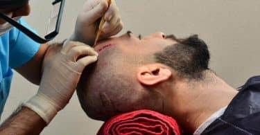 ما هي افضل مراكز زراعة الشعر في تركيا