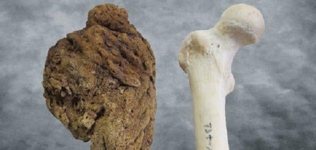 معلومات طبية عن أعراض سرطان العظام