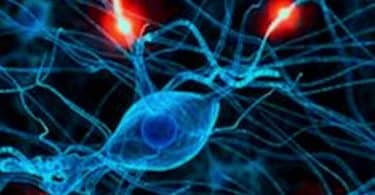 معلومات عن اعراض التهاب الاعصاب في الراس