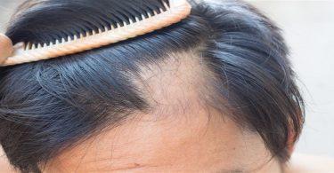 معلومات عن ثعلبة الشعر