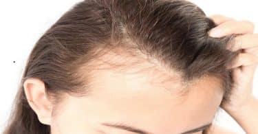 أسباب ظهور فراغات في فروة الرأس وعلاجها