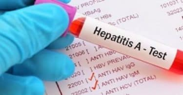 أعراض فيروس A وكيفية علاجه