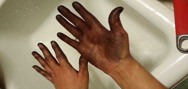 ازالة الصبغة السوداء من الجلد