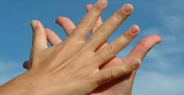 طرق علاج تعرق اليدين بالشاي