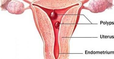 علاج النزيف الرحمي المستمر