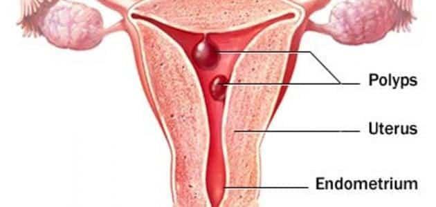 علاج النزيف الرحمي المستمر | معلومة ثقافية