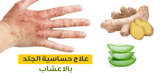 علاج حساسية الجلد والهرش بالاعشاب