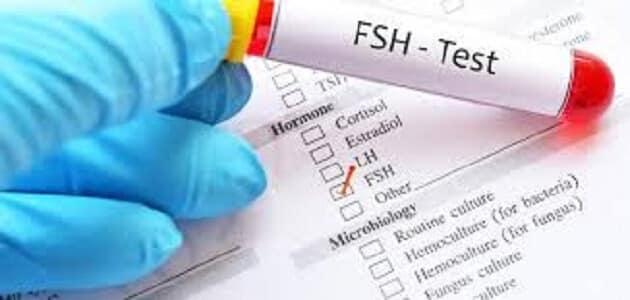 كم معدل هرمون fsh الطبيعي