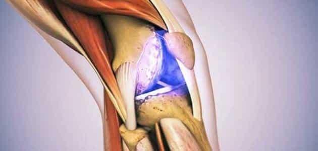 ما هو علاج غضروف الركبة