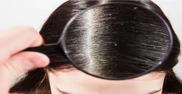 ما هي قشرة الشعر وعلاجها