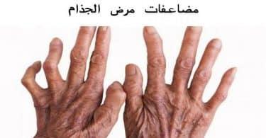 ما هي مضاعفات مرض الجذام