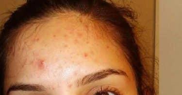 أسباب ظهور الحبوب في الوجه وعلاجها