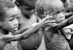 امراض سوء التغذية عند الاطفال