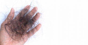 علاج تساقط الشعر بالاعشاب والزيوت الطبيعية