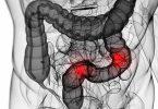 مرض القولون وعلاقته بالقلب