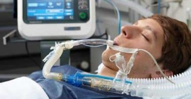 مضاعفات جهاز التنفس الاصطناعي