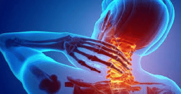 معلومات صحية عن اعراض غضروف الرقبة